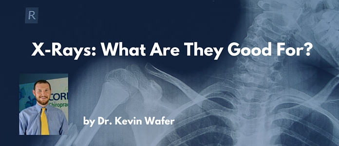 xrays what are they good for